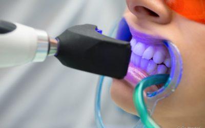 Branqueamento pode acabar com o esmalte dentário? Confira nas palavras de um especialista