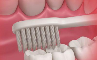 Como higienizar o dente siso? Um dentista explica a técnica para limpar esse espaço