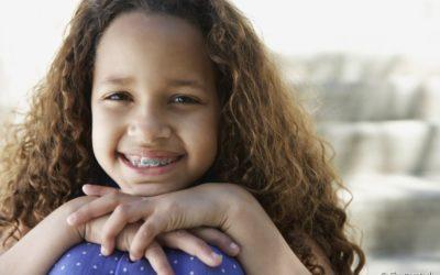 Aparelho ortodôntico na infância. Entenda a importância do acompanhamento dos pais para o tratamento