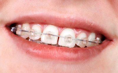 Aparelho ortodôntico em crianças: é preciso extrair os dentes de leite para realizar o tratamento?