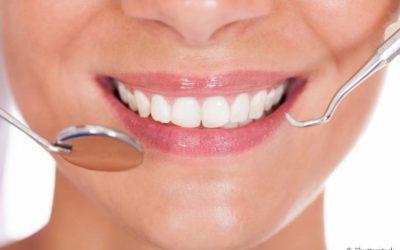 Quanto tempo dura a lente de contato dental? É preciso refazer a técnica depois de um tempo?