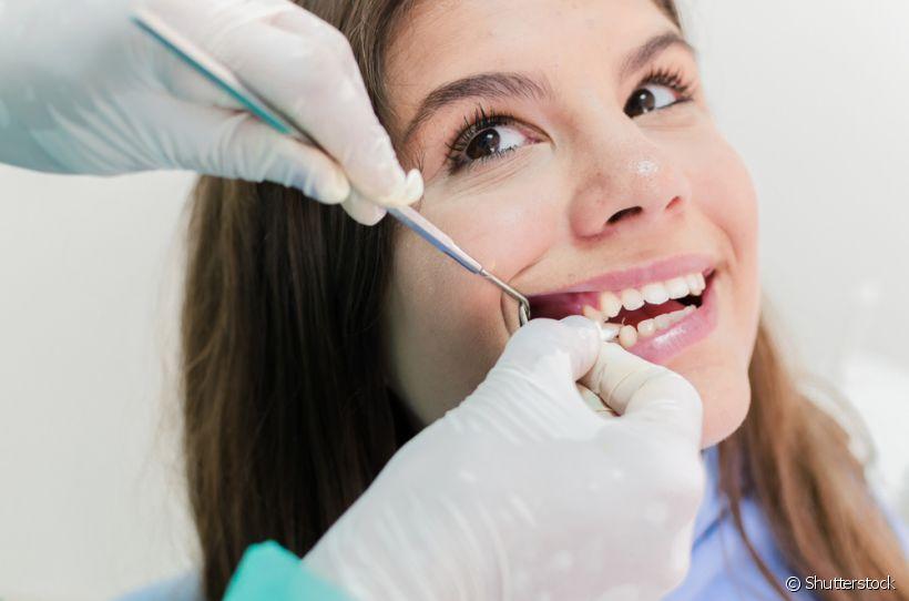 Reabsorção da raiz do dente: o que é e em quais casos acontece?