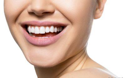 Manchas intrínsecas e extrínsecas nos dentes: você sabe a diferença?