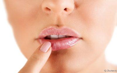 Início do herpes na boca: veja como identificar os primeiros sintomas