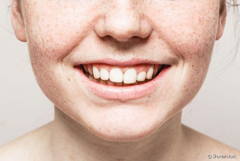 O que é gengivite e quais seus sintomas mais comuns?