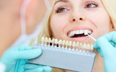 Prótese dentária moderna e natural: como ter seu sorriso de volta com a ajuda da tecnologia