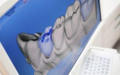 Odontologia 3D: conheça a tecnologia odontológica que consegue projetar os dentes pelo computador