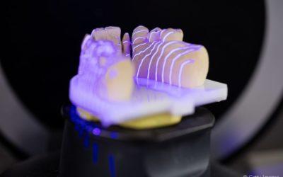 Avanços tecnológicos na odontologia: conheça 4 dos mais usados hoje em dia
