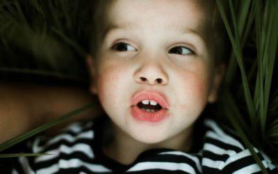 Fluorose dentária tem tratamento? Veja como solucionar o problema