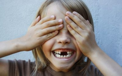 Perda precoce dos dentes de leite: como isso afeta a saúde bucal da criança? Conheça os principais motivos e como evitar
