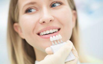 Lente de contato dental: o que é? Quanto tempo dura? É a mesma coisa que facetas de porcelana? Como cuidar da higiene