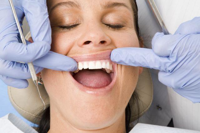 Gengivoplastia: você sabe o que é? Para que serve? Quem pode fazer? Quais os riscos e cuidados do procedimento?