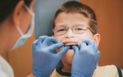 Mantenedor de espaço: o que é? Para que serve? Em quais casos deve ser usado? Ortodontista esclarece essas dúvidas